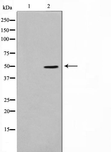 Western blot analysis on HepG2 cell lysate using SERC1 Antibody,The lane on the left is treated with the antigen-specific peptide.
