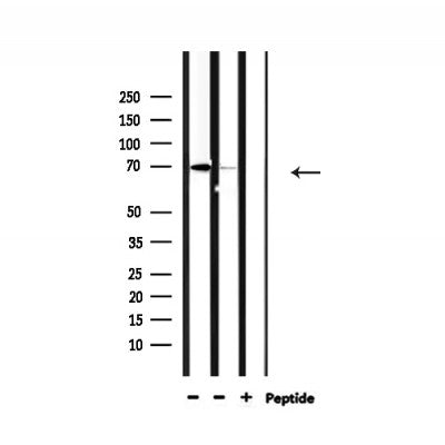 Western blot analysis of extracts from 293 and mouse brain, using NXF1 Antibody.