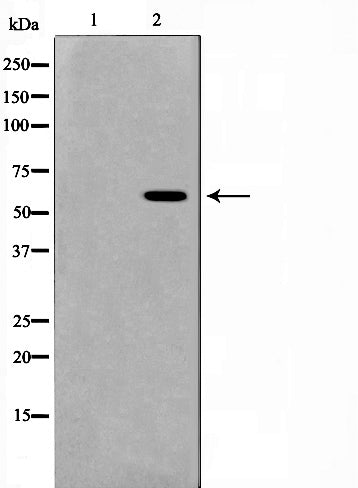Western blot analysis on HeLa cell lysate using MUTYH Antibody,The lane on the left is treated with the antigen-specific peptide.
