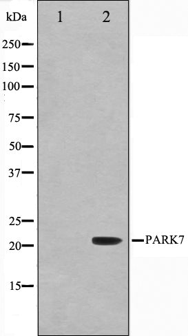 Western blot analysis on HuvEc cell lysate using PARK7 Antibody,The lane on the left is treated with the antigen-specific peptide.