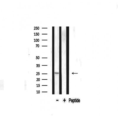 Western blot analysis on mouse liver lysate using Caveolin-1 Antibody