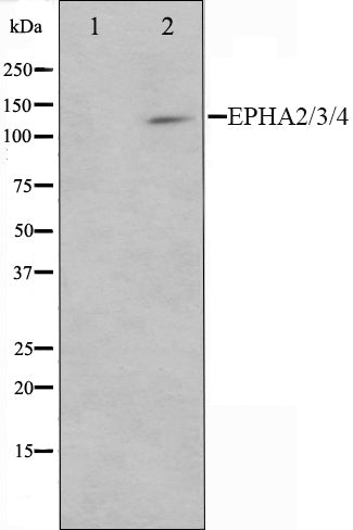Western blot analysis on HepG2 cell lysate using EPHA2/3/4 Antibody,The lane on the left is treated with the antigen-specific peptide.