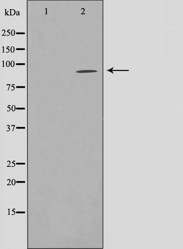 Western blot analysis on HuvEc cell lysate using NADAP Antibody,The lane on the left is treated with the antigen-specific peptide.