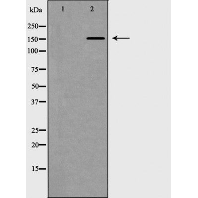 DF6578 staining HepG2 by IF/ICC. The sample were fixed with PFA and permeabilized in 0.1% Triton X-100,then blocked in 10% serum for 45 minutes at 25¡ãC. The primary antibody was diluted at 1/200 and incubated with the sample for 1 hour at 37¡ãC. An  Alexa Fluor 594 conjugated goat anti-rabbit IgG (H+L) Ab, diluted at 1/600, was used as the secondary antibod