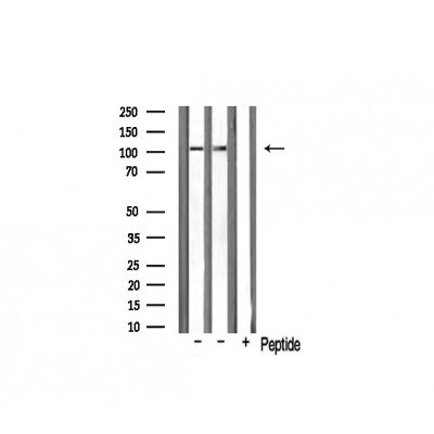 AF0528 staining HuvEc by IF/ICC. The sample were fixed with PFA and permeabilized in 0.1% Triton X-100,then blocked in 10% serum for 45 minutes at 25¡ãC. The primary antibody was diluted at 1/200 and incubated with the sample for 1 hour at 37¡ãC. An  Alexa Fluor 594 conjugated goat anti-rabbit IgG (H+L) Ab, diluted at 1/600, was used as the secondary antibod