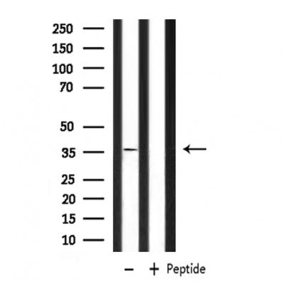 DF6956 staining HepG2 by IF/ICC. The sample were fixed with PFA and permeabilized in 0.1% Triton X-100,then blocked in 10% serum for 45 minutes at 25¡ãC. The primary antibody was diluted at 1/200 and incubated with the sample for 1 hour at 37¡ãC. An  Alexa Fluor 594 conjugated goat anti-rabbit IgG (H+L) Ab, diluted at 1/600, was used as the secondary antibod