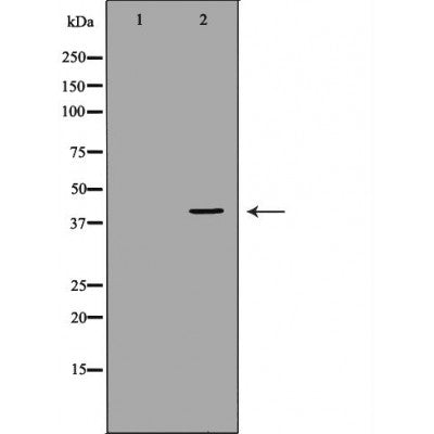 Western blot analysis of extracts of mouse fetal lungtissue lysate, using DUSP1 antibody. The lane on the left is treated with the antigen-specific peptide.