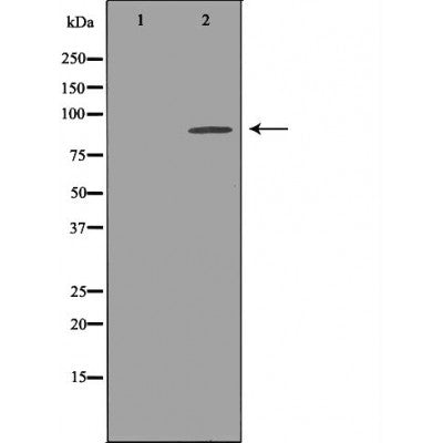Western blot analysis of extracts of Mouse brain tissue lysate, using KCNH2antibody. The lane on the left is treated with the antigen-specific peptide.