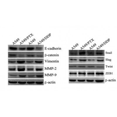 E-cadherin, ?-catenin, vimentin, MMP-2 and MMP-9 which are EMT-related proteins, were assessed in terms of expression levels. EMT-related transcription factors (Snail, Slug, Twist and ZEB1) were measured in A549/PTX and A549/DDP cells using western blot analysis.
