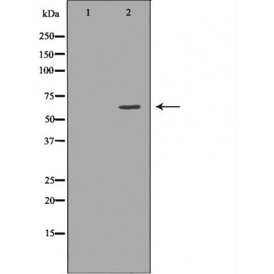 DF7387 staining Hela by IF/ICC. The sample were fixed with PFA and permeabilized in 0.1% Triton X-100,then blocked in 10% serum for 45 minutes at 25¡ãC. The primary antibody was diluted at 1/200 and incubated with the sample for 1 hour at 37¡ãC. An  Alexa Fluor 594 conjugated goat anti-rabbit IgG (H+L) Ab, diluted at 1/600, was used as the secondary antibod
