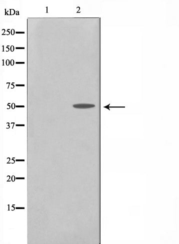 Western blot analysis on SK-OV3 cell lysate using Cyclin A1 Antibody,The lane on the left is treated with the antigen-specific peptide.