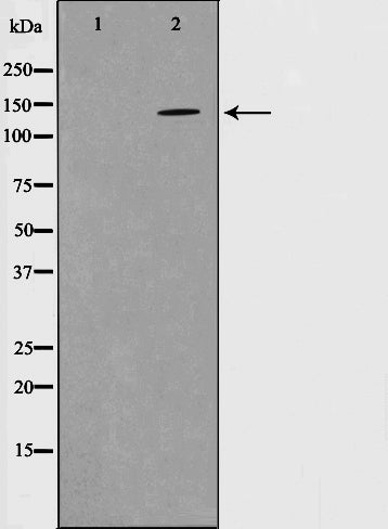 Western blot analysis on mouse brain cell lysate using Phospho-PYK2(Tyr580) Antibody.The lane on the left is treated with the antigen-specific peptide.