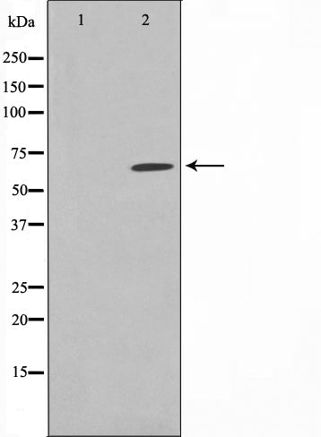 Western blot analysis on rat heart cell lysate using Phospho-PAK3(Ser154) Antibody.The lane on the left is treated with the antigen-specific peptide.