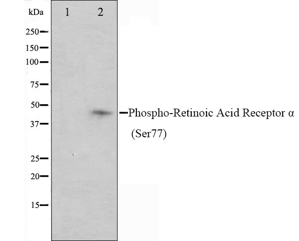 Western blot analysis on Jurkat cell lysate using Phospho-Retinoic Acid Receptor alpha (Ser77) Antibody,The lane on the left is treated with the antigen-specific peptide.