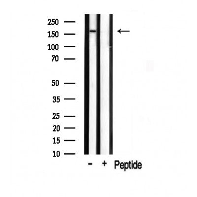 AF0793 staining Hela by IF/ICC. The sample were fixed with PFA and permeabilized in 0.1% Triton X-100,then blocked in 10% serum for 45 minutes at 25¡ãC. The primary antibody was diluted at 1/200 and incubated with the sample for 1 hour at 37¡ãC. An  Alexa Fluor 594 conjugated goat anti-rabbit IgG (H+L) Ab, diluted at 1/600, was used as the secondary antibod
