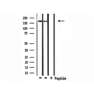 Western blot analysis of extracts from 293 and Hela, using Collagen IV Antibody.
