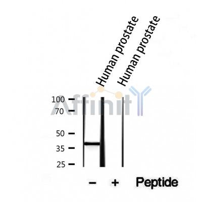 Western blot analysis of extracts from human prostate, using NKX3.1 Antibody.