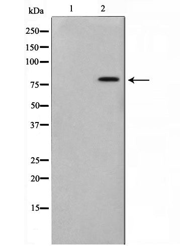 Western blot analysis on COLO205 cell lysate using TRIM3 Antibody,The lane on the left is treated with the antigen-specific peptide.