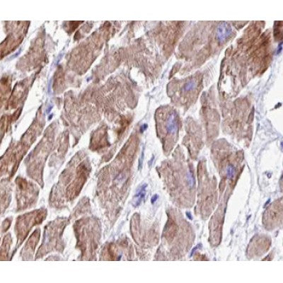 AF0453 at 1/100 staining human heart muscle tissue sections by IHC-P. The tissue was formaldehyde fixed and a heat mediated antigen retrieval step in citrate buffer was performed. The tissue was then blocked and incubated with the antibody for 1.5 hours at 22¡ãC. An HRP conjugated goat anti-rabbit antibody was used as the secondary