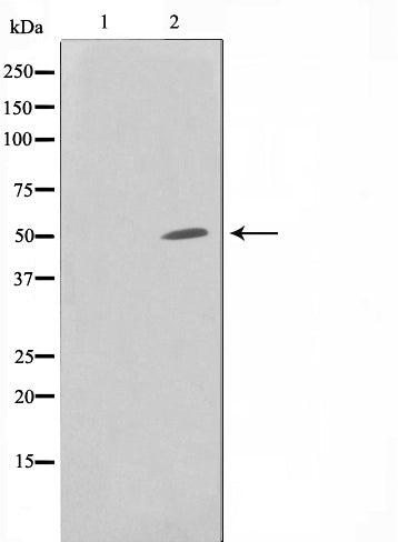 Western blot analysis on HuvEc cell lysate using SUPT3H Antibody,The lane on the left is treated with the antigen-specific peptide.