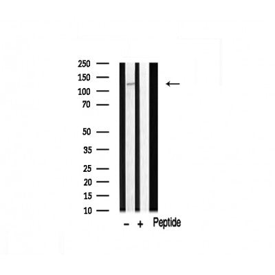 AF0527 staining HuvEc by IF/ICC. The sample were fixed with PFA and permeabilized in 0.1% Triton X-100,then blocked in 10% serum for 45 minutes at 25¡ãC. The primary antibody was diluted at 1/200 and incubated with the sample for 1 hour at 37¡ãC. An  Alexa Fluor 594 conjugated goat anti-rabbit IgG (H+L) Ab, diluted at 1/600, was used as the secondary antibod