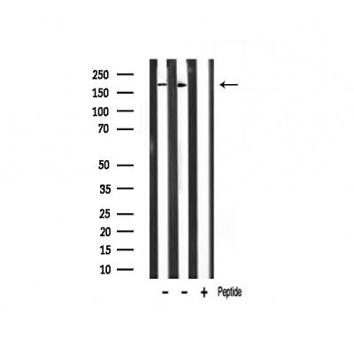 Western blot analysis of TAF1 Antibody expression in mouse heart and rat muscle tissues lysates.The lane on the right is treated with the antigen-specific peptide.