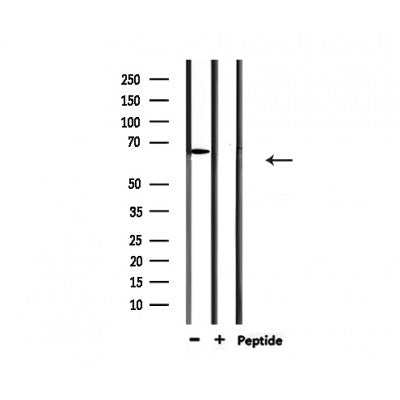 Western blot analysis of extracts from 293, using PIAS2 Antibody.