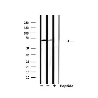Western blot analysis of extracts from 293 and Hela, using PIAS2 Antibody.