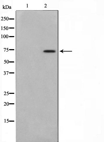 Western blot analysis on HT29 cell lysate using MED17 Antibody,The lane on the left is treated with the antigen-specific peptide.