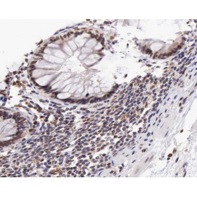 AF0164 at 1/100 staining human colon carcinoma tissue sections by IHC-P. The tissue was formaldehyde fixed and a heat mediated antigen retrieval step in citrate buffer was performed. The tissue was then blocked and incubated with the antibody for 1.5 hours at 22¡ãC. An HRP conjugated goat anti-rabbit antibody was used as the secondary