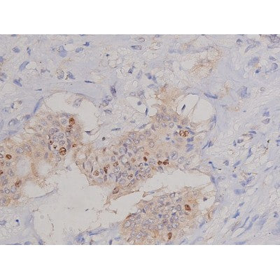 AF0198 at 1/200 staining Human colon cancer tissue sections by IHC-P. The tissue was formaldehyde fixed and a heat mediated antigen retrieval step in citrate buffer was performed. The tissue was then blocked and incubated with the antibody for 1.5 hours at 22¡ãC. An HRP conjugated goat anti-rabbit antibody was used as the secondary