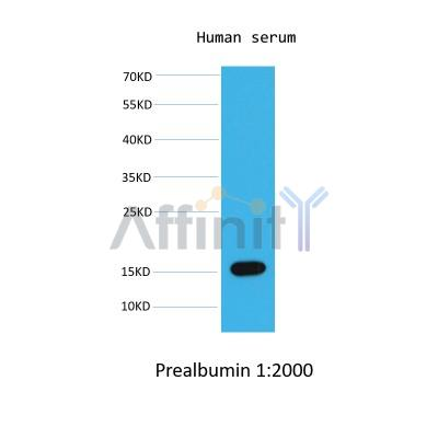 Western blot analysis of  human serum,using Prealbumin mouse monoclonal antibody.