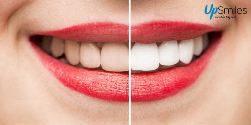 Teeth Whitening Tips To Make Your Smile Brighter