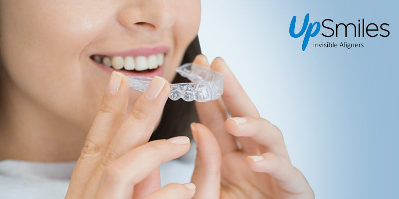 how aligners work
