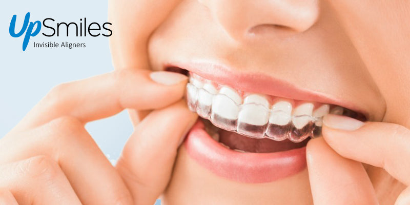 benefits of teeth aligners