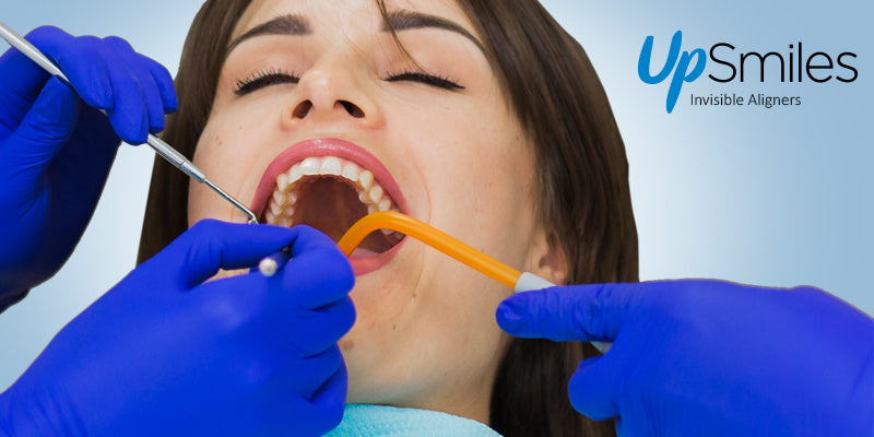 Should I Avoid Routine Dental Check-ups and Cleanings While In Clear Aligners Treatment?