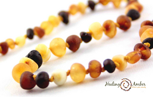 Healing Amber Necklaces and Bracelets