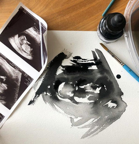 Custom Watercolour Ultrasound
