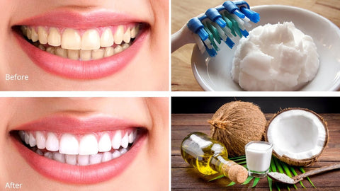 Coconut oil For pearly whites and a clean mouth