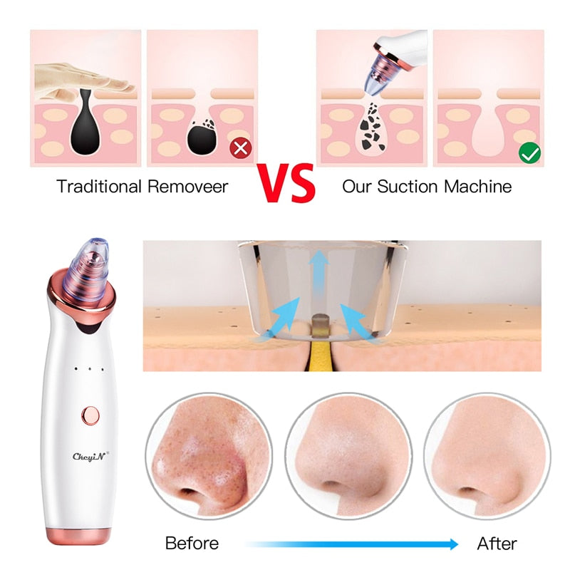 Blackhead Remover Vacuum Acne Pimple Removal Extractor + Nano Mister Sprayer