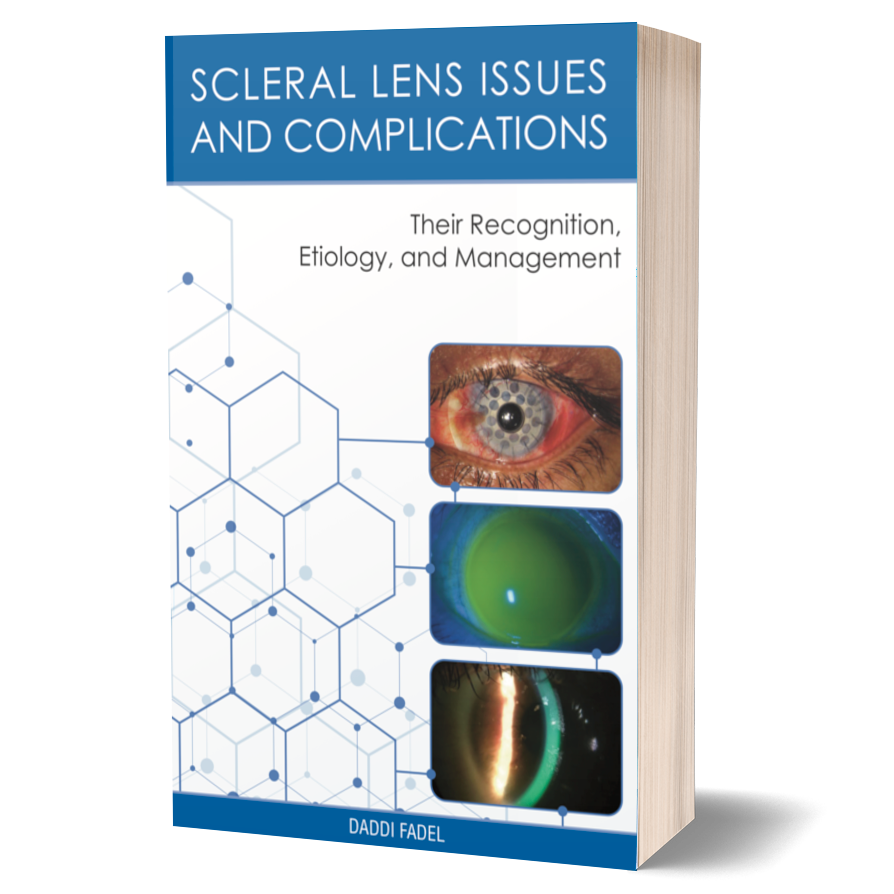 Scleral Lens Issues and Complications - Their Recognition, Etiology, and Management Full Print Book