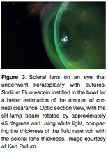 Load image into Gallery viewer, Chapter 1: Vital Stain In Scleral lens Practice (E-Book)