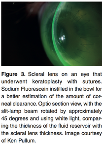 Chapter 1: Vital Stain In Scleral lens Practice (E-Book)