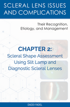 Load image into Gallery viewer, Chapter 2: Scleral Shape Assessment Using Slit Lamp and Diagnostic Scleral Lenses (E-Book)