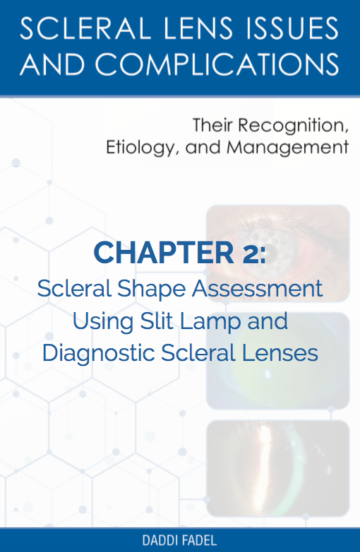 Chapter 2: Scleral Shape Assessment Using Slit Lamp and Diagnostic Scleral Lenses (E-Book)