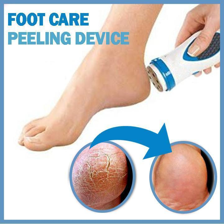 Foot Callus Remover - 60% OFF!
