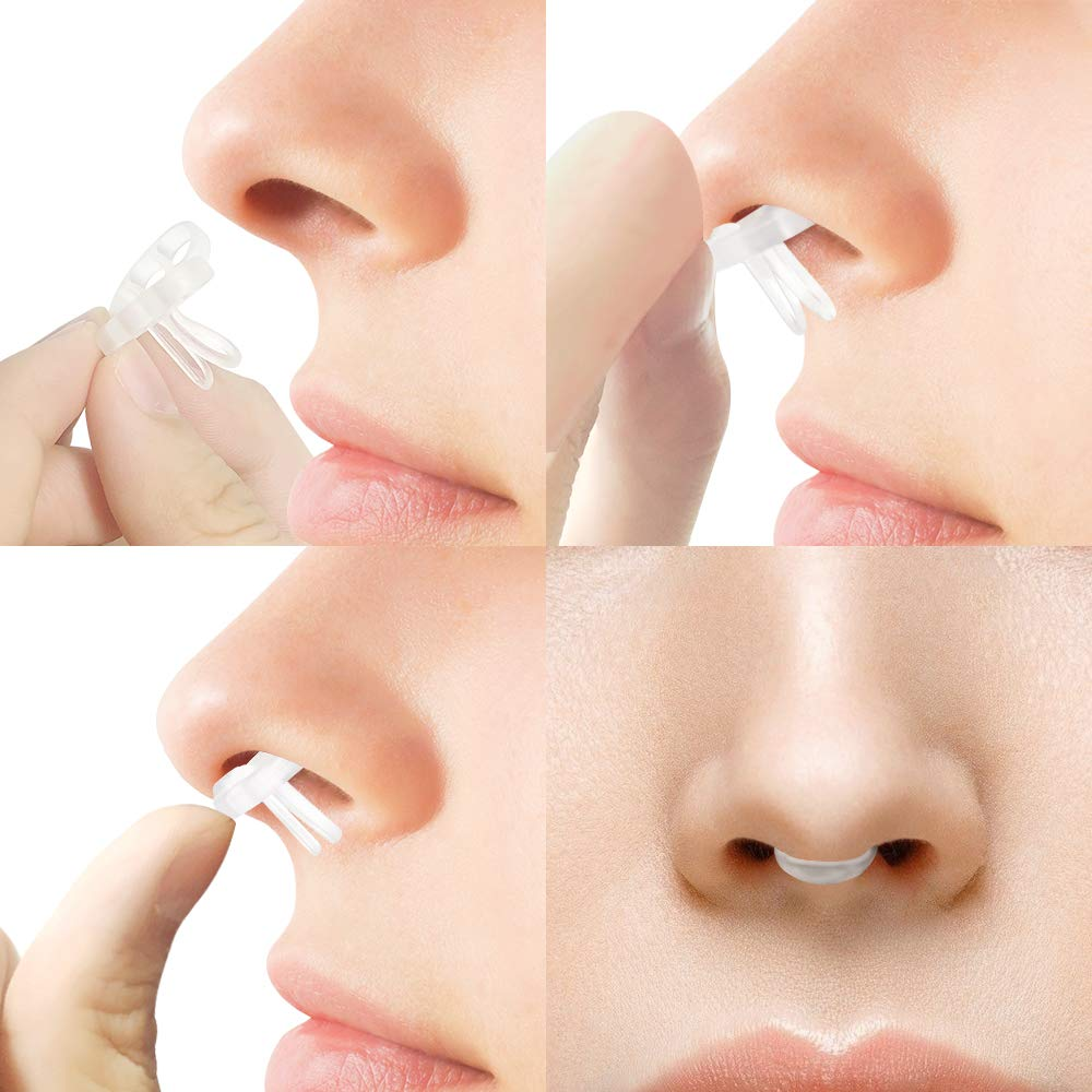 WoodyKnows Super-Support Nasal Dilators