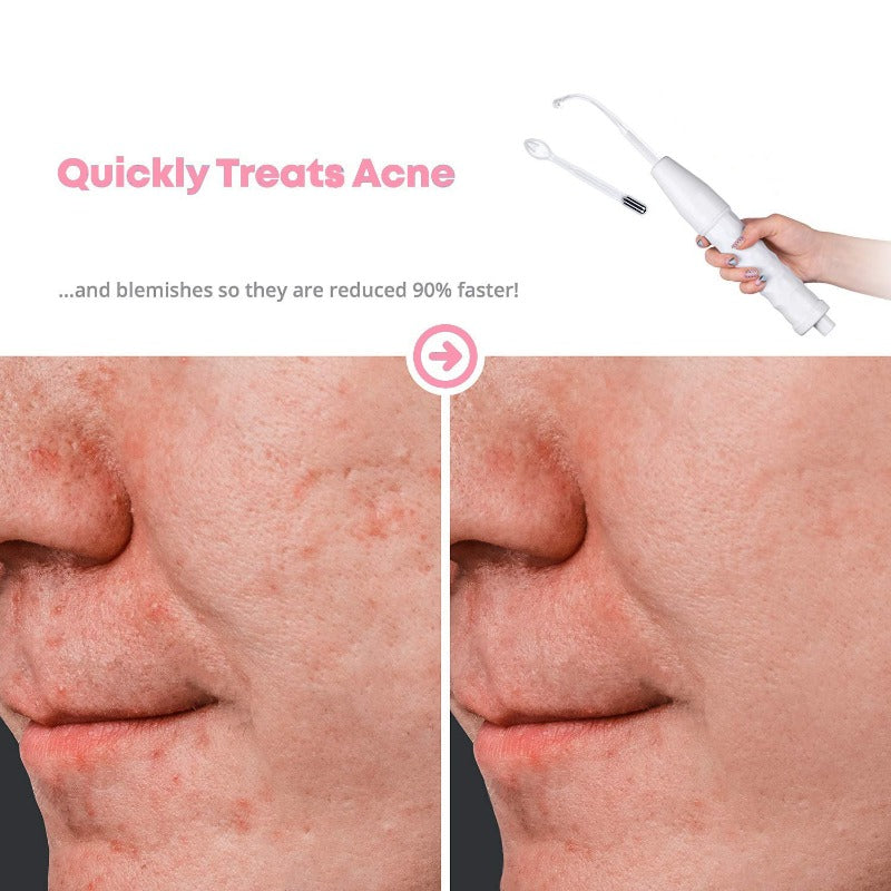 High Frequency Skin Rejuvenator - 50% OFF TODAY