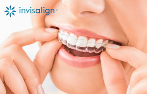 Invisalign Single Set Replacement Tray
