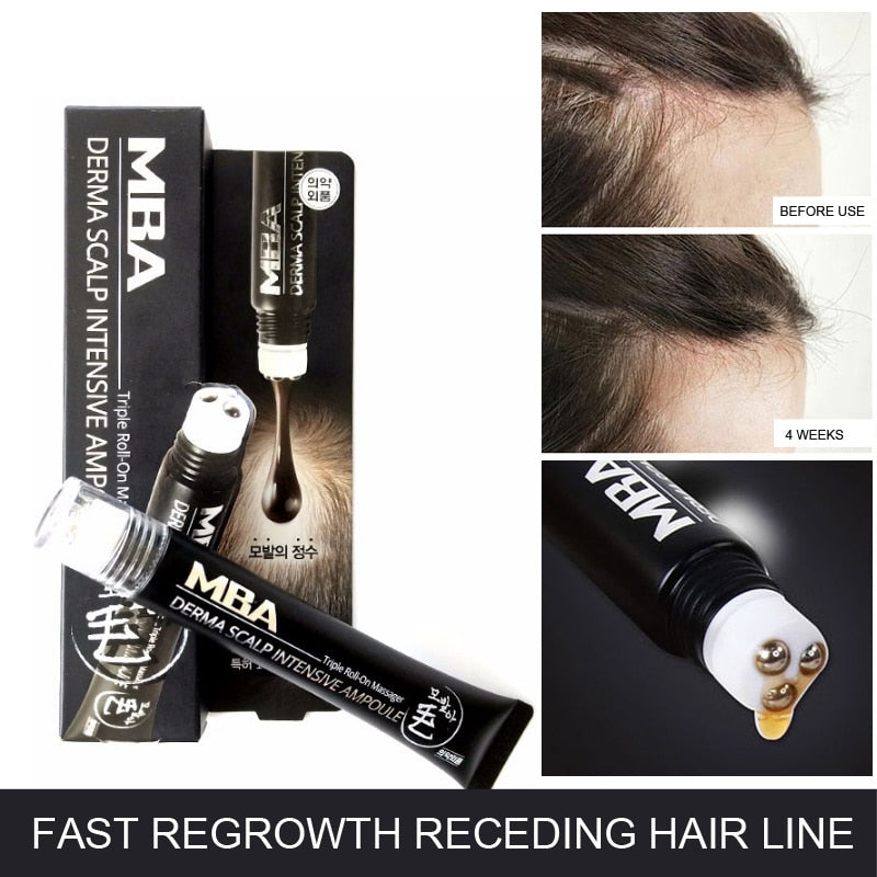 Scalp Intense, Roll-on Hair Growth Serum